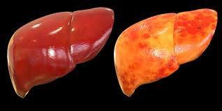 Những điều cần biết về gừng đối với sức khỏe của gan